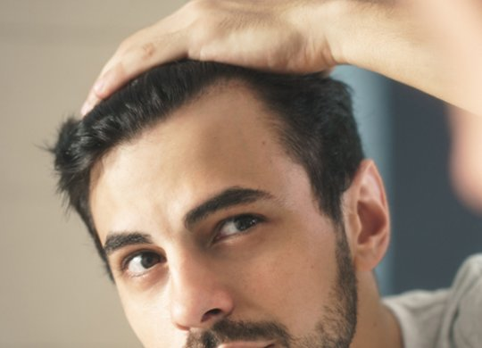 alopecia-androgenica