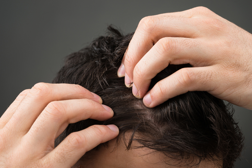 tratamiento-mesohyal-cabello