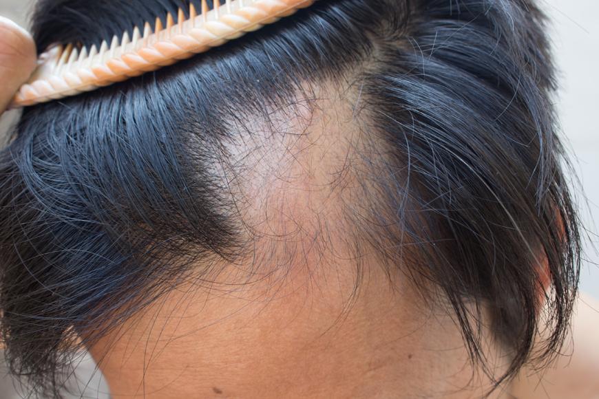 tratar-alopecia-boclinic