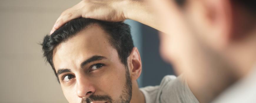 tratar-alopecia