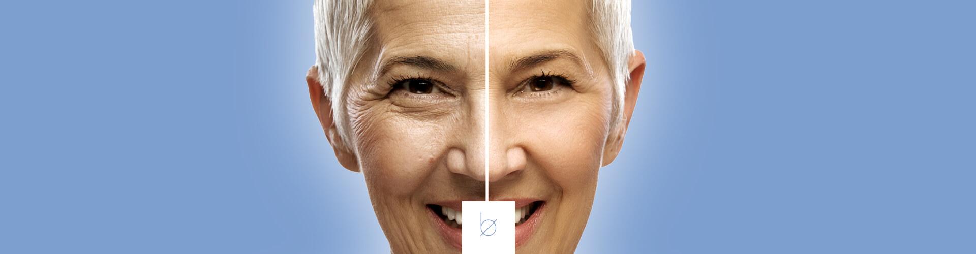 Revitaliza rostro con botox