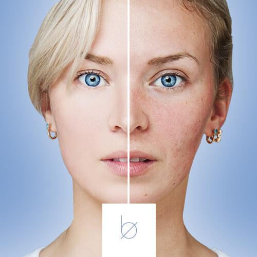 Eliminación manchas en la piel en Boclinic