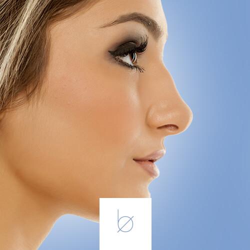 Remodelación nasal en Boclinic