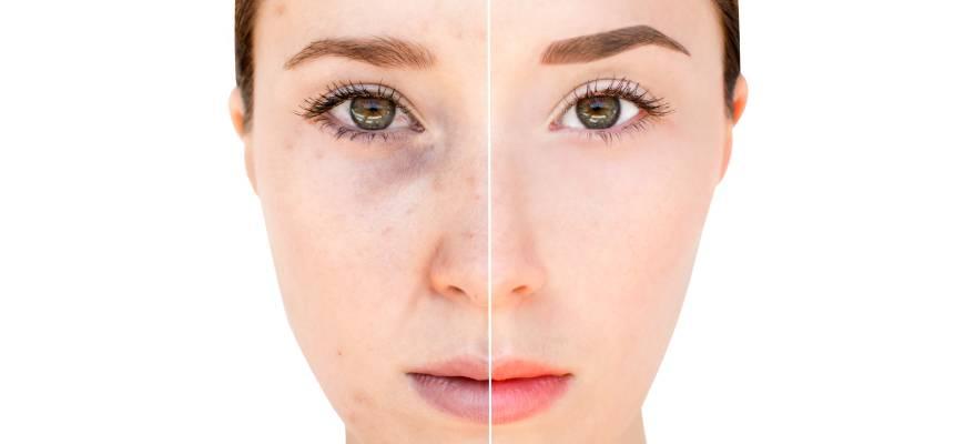 eliminar manchas piel tras el verano