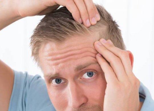caída cabello alopecia