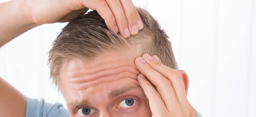 caida cabello alopecia hombres